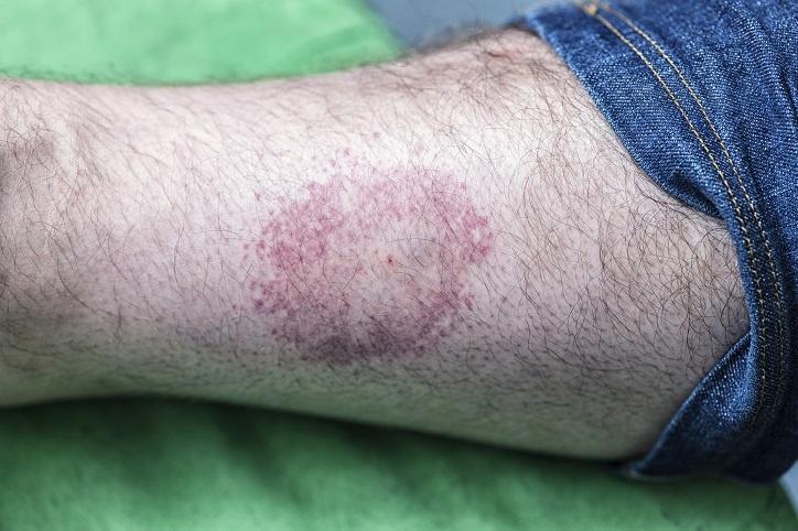 Czy test CD57 jest skuteczny w diagnozowaniu boreliozy?
